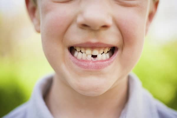 Kid with Missing Tooth